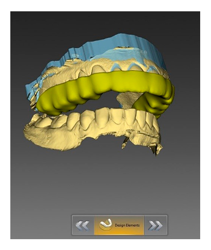 3d printed dental model for invisible aligners treatment