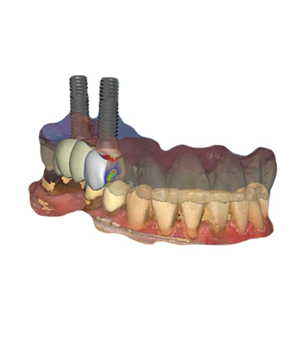 Virtual Implant Planning Services