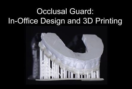 3D designed and printed mouthguard perudental