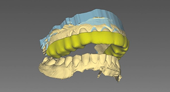 3d teeth model before Invisalign invisible aligners treatment
