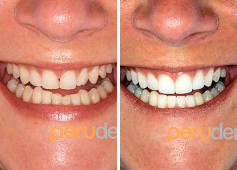 frontal teeth comparison after dental whitening treatment