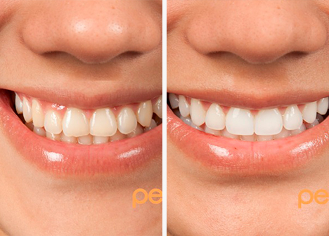 teeth comparison after smile dental design