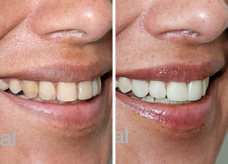 teeth comparison after teeth whitening procedure in PeruDental