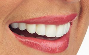 perfect white teeth after Perudental´s smile dental design and teeth whitening