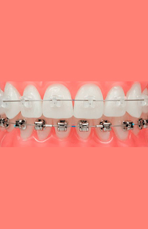 orthodontics with clear and metallic braces