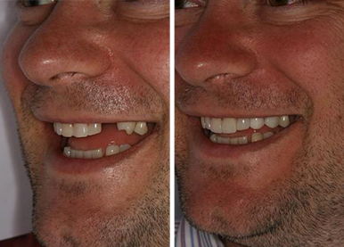 before and after photos of a patient treated with single tooth digital implant