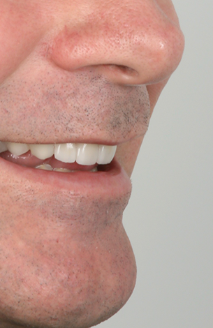smile makeover with 3D veneers at perudental
