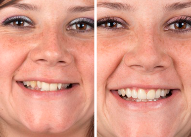 comparison of before and after smile makeover treatment with 3D veneers at perudental