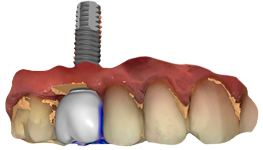 3D image of a virtual implant at perudental
